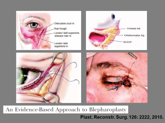 Blepharoplasty wp
