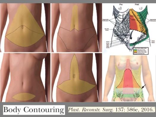 body contour wp 1