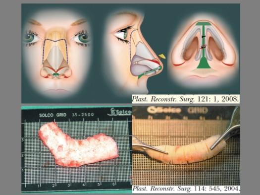 Rhinoplasty wp